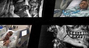 【奇跡の】バックドアでのヘビーワイプアウトで頭蓋骨を骨折する致命的ダメージを受け回復を遂げたDusty Payneのリアル・ドキュメンタリー日本語字幕版
